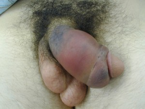egg deformity